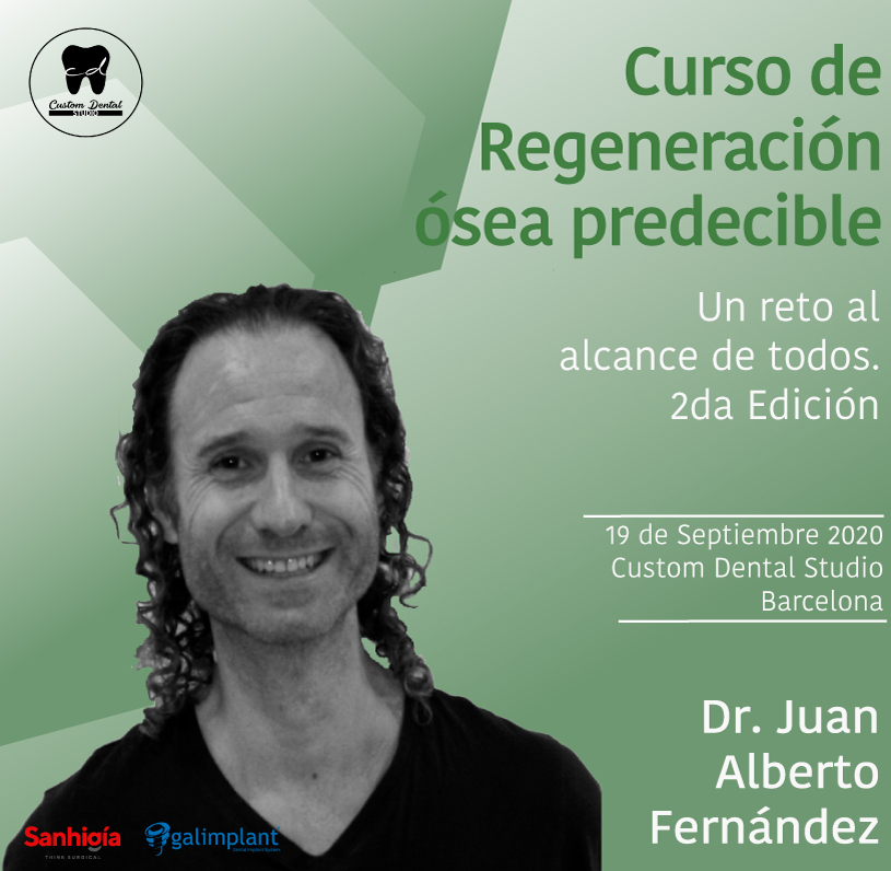 REGENERACIÓN ÓSEA PREDECIBLE. <br>UN RETO AL ALCANCE DE TODOS. 2ª Edición.