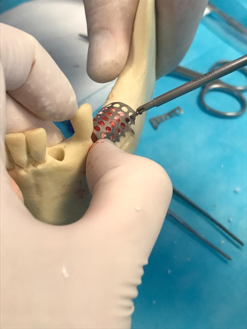 regeneración de tejidos, reconstrucción ósea e implantología avanzada
